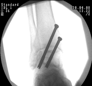 Ankle-arthrodesis