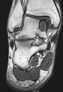 Large medial OCL on MRI