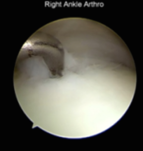 Example of OCL as seen during ankle scope
