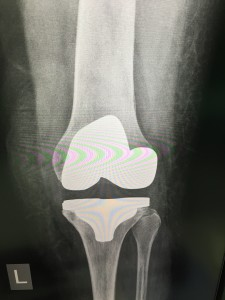 AP x-ray of Total Knee Replacement